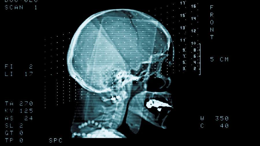 Ученые рассказали, как улучшить работу мозга