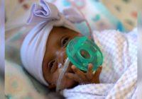 Американские врачи выходили самого маленького в мире младенца