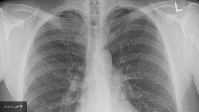 Названы регионы с наибольшим количеством больных туберкулёзом