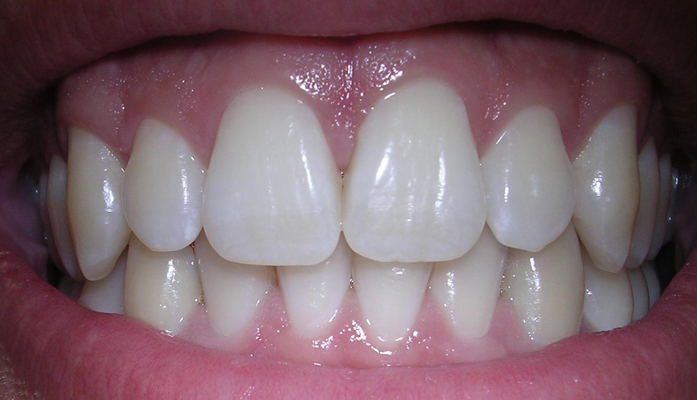 Врач рассказал об опасности коронавируса для зубов